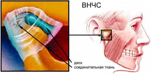 Нижнечелюстной сустав гомеопатия какой врач лечит суставы должна фиксировать шина при переломе бедра