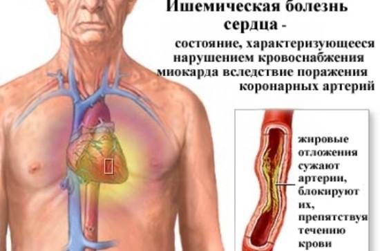 Курение и ишемическая болезнь сердца ИБС