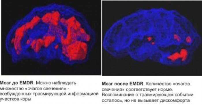 Школы психотерапии. 28. EMDR (ДПДГ) - Десенсибилизация и переработка движением глаз (4)