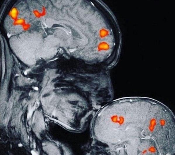 Поцелуй на МРТ