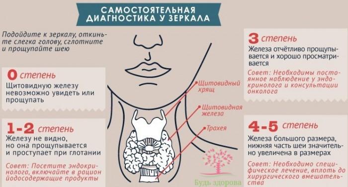 Аллергия щитовидка — Все про аллергию